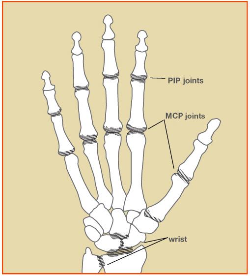 An Overview of Rheumatoid Arthritis - Orthopedic & Sports Medicine