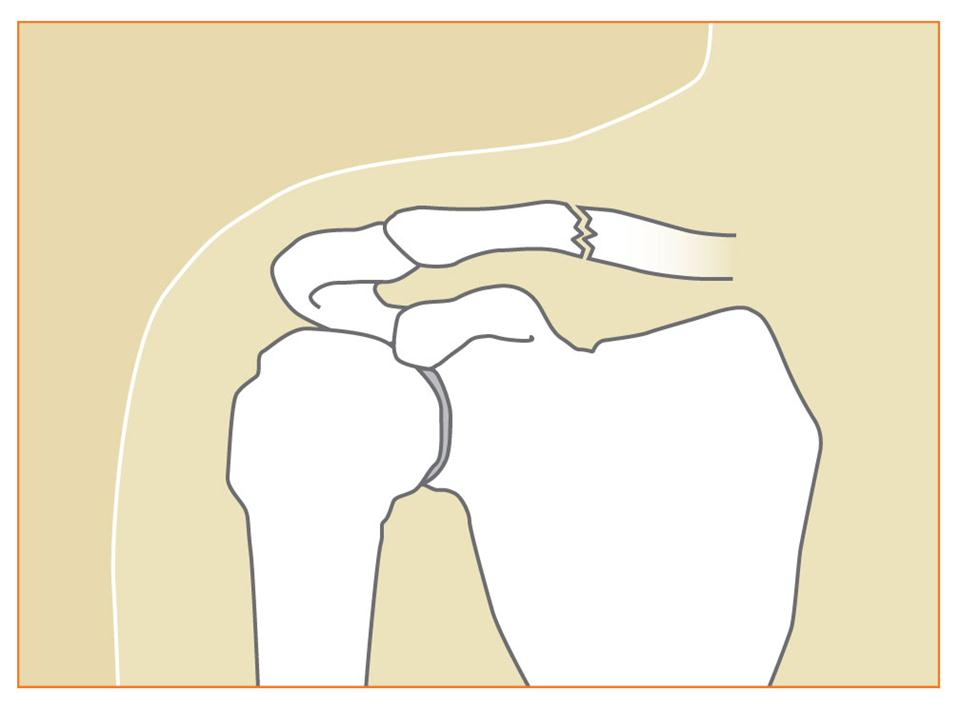 Types Of Shoulder Fractures Shoulder Fracture Recovery Process