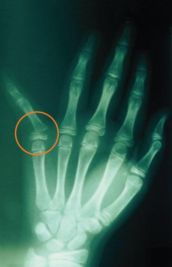 Child Fractures Figure 1
