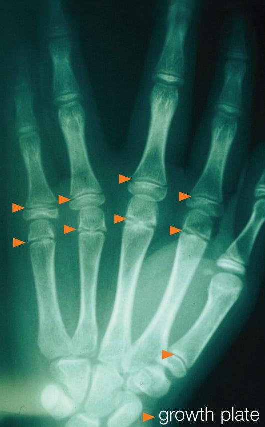 Child Fractures Figure 2
