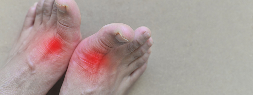 Gout and Pseudogout - What Is It? - Orthopedic & Sports Medicine