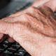 A Patient's Guide to Rheumatoid Arthritis