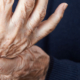 5 Ways to Help Prevent Arthritis