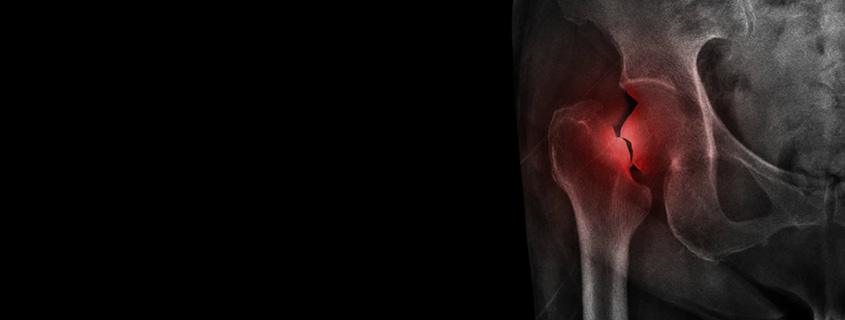 Fracture After Total Hip Replacement