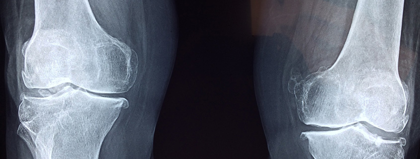 Why Knee Pain Could Be a Thing of the Past