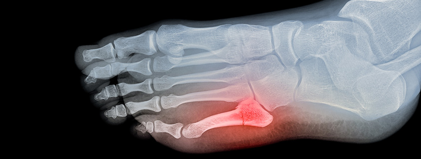 What you should know about a broken pinky toe