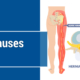 Common Causes of Sciatica